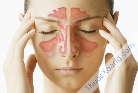 Cơ chế hoạt động của bệnh viêm xoang mũi
