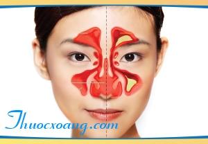 thảo dược trị xoang Doctor Nam