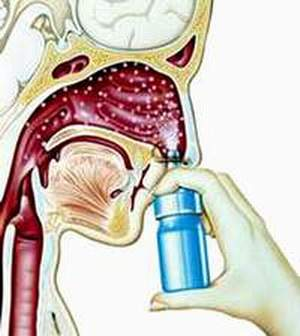 Các triệu chứng, biến chứng nguy hiểm, cách phòng ngừa và điều trị bệnh viêm xoang