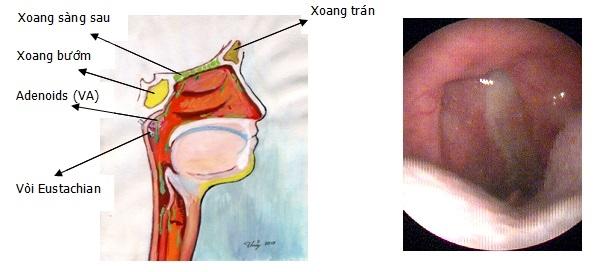 viêm thanh quản và viêm xoang mũi