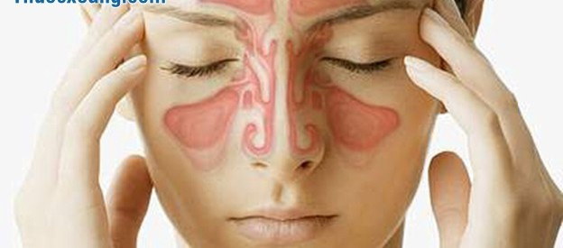 Điều trị viêm xoang mũi bằng Tây Y
