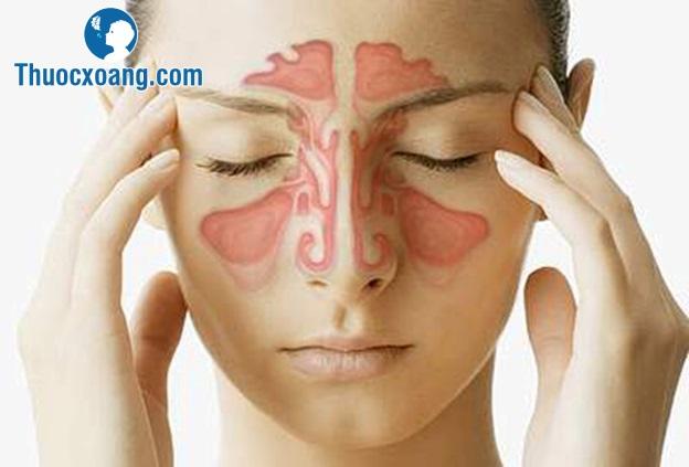 Các cách điều trị viêm xoang mũi bằng Tây Y