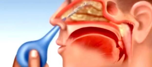Rửa mũi bằng nước muối là cách điều trị viêm xoang hiệu quả