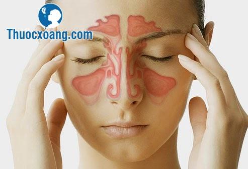 Tìm hiểu về bệnh viêm xoang mãn tính 2
