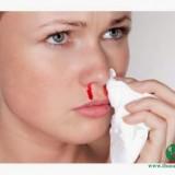 Những bệnh nguy hiểm với biểu hiện chảy máu cam